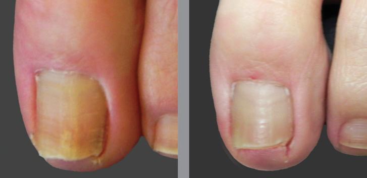 наверняка первоначальные проявления грибка на ногтях рук Провайдеров Цене