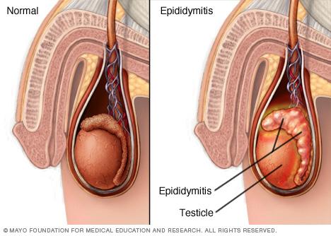 Эпидидимит лечение в домашних условиях