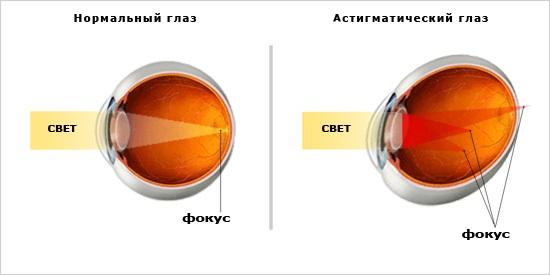 Операция на глаз видео астигматизм