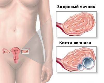 Боль в яичниках во время секса фото 412-291
