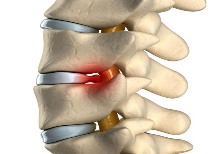 Чем лечить воспаление суставов ступни